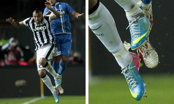 Arturo Vidal Juventus Vapor IX edited