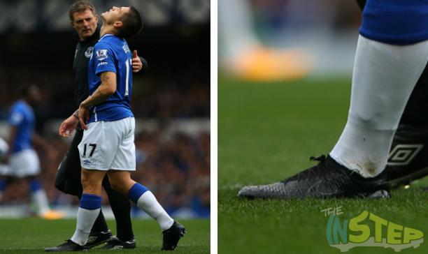 Muhamed Besic Everton custom Obra edited